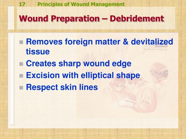 Wound Preparation – Debridement