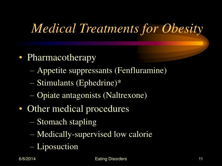 Medical Treatments for Obesity