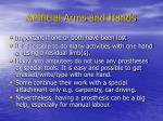 artificial arms and hands1