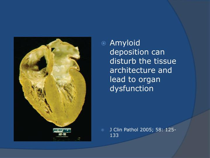 Amyloid deposition can disturb the tissue architecture and lead to organ dysfunction