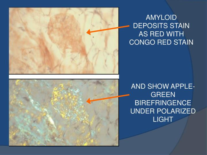 AMYLOID DEPOSITS STAIN AS RED WITH CONGO RED STAIN