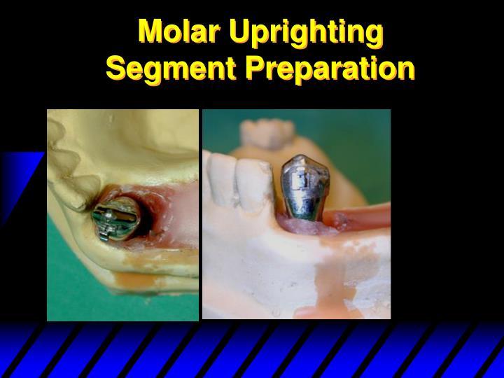 Molar Uprighting