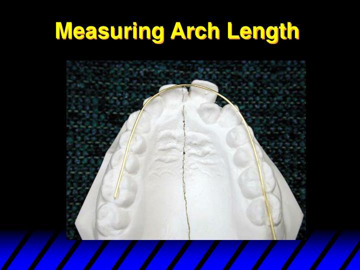 Measuring Arch Length