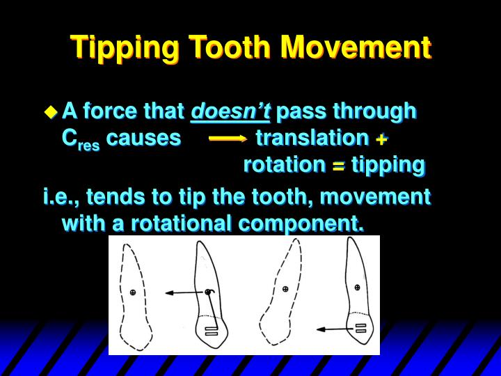 Tipping Tooth Movement