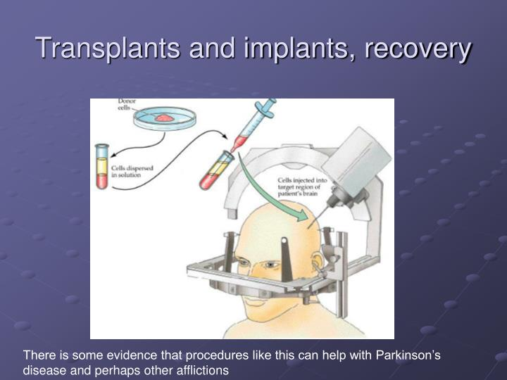 Transplants and implants, recovery
