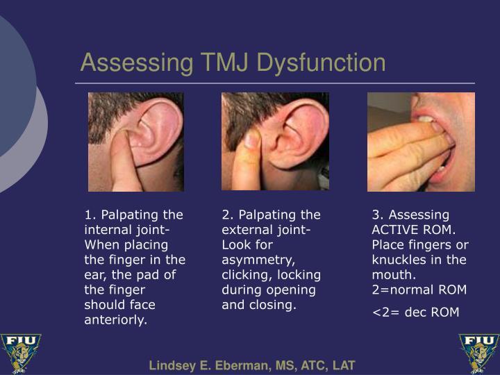 Assessing TMJ Dysfunction