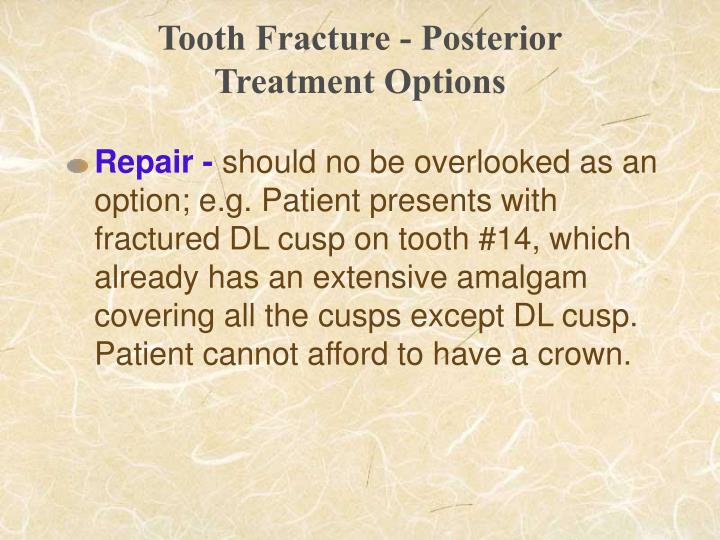 Tooth Fracture - Posterior
