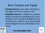 burn causes and types2