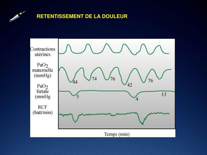 RETENTISSEMENT DE LA DOULEUR