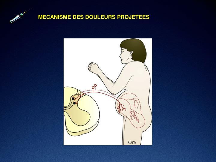 MECANISME DES DOULEURS PROJETEES