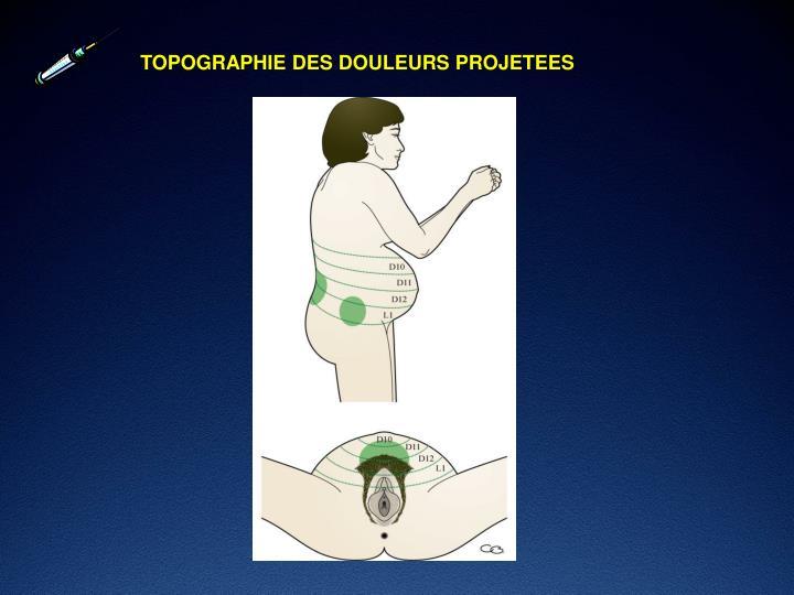TOPOGRAPHIE DES DOULEURS PROJETEES