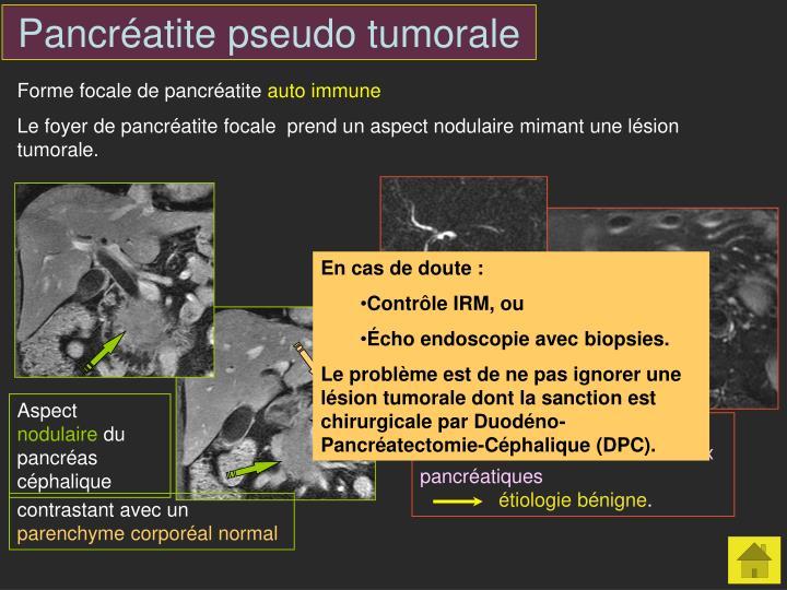 Pancréatite pseudo tumorale