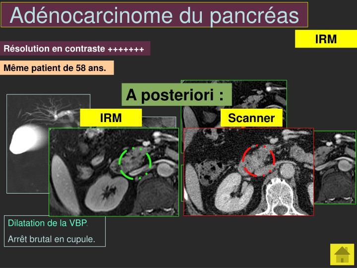 Adénocarcinome du pancréas