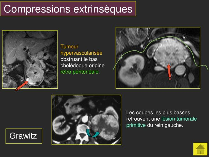 Compressions extrinsèques