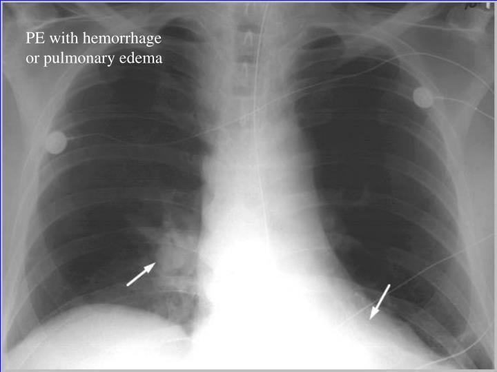PE with hemorrhage or pulmonary edema