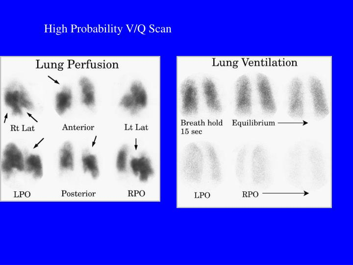 High Probability V/Q Scan