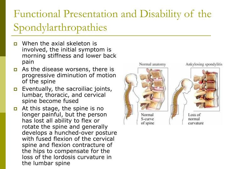 Functional Presentation and Disability of the Spondylarthropathies