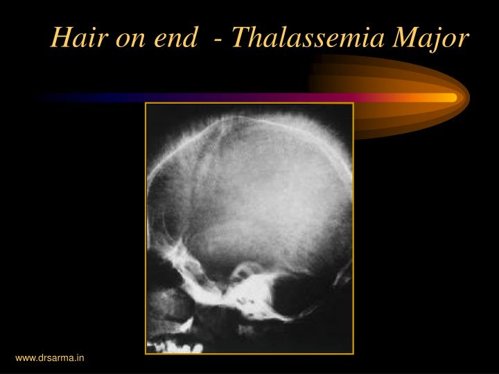 Hair on end  - Thalassemia Major