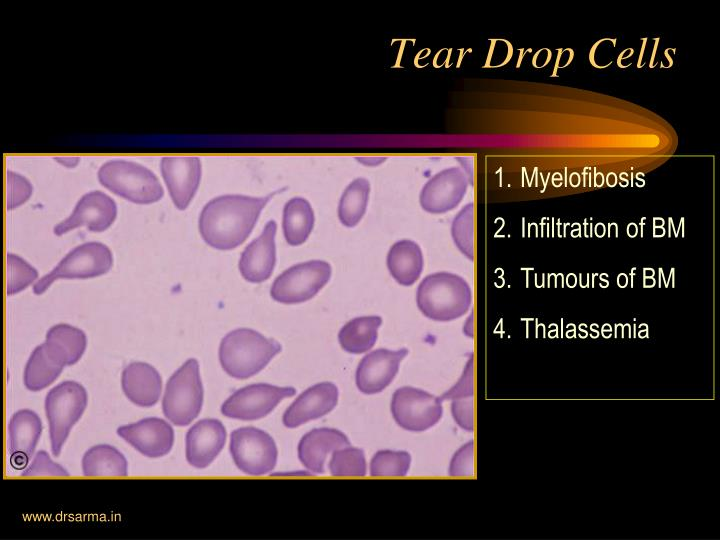 Tear Drop Cells