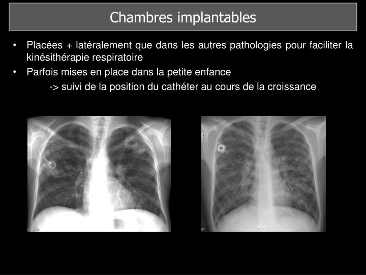 Chambres implantables