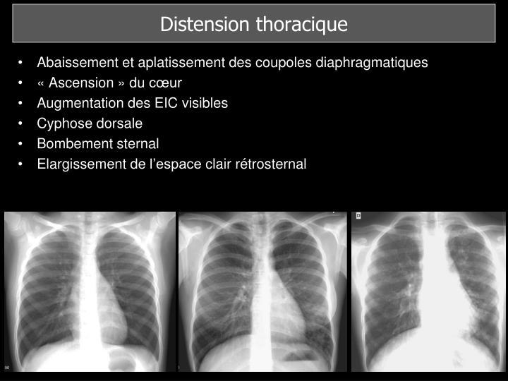 Distension thoracique