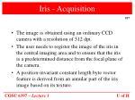 iris acquisition