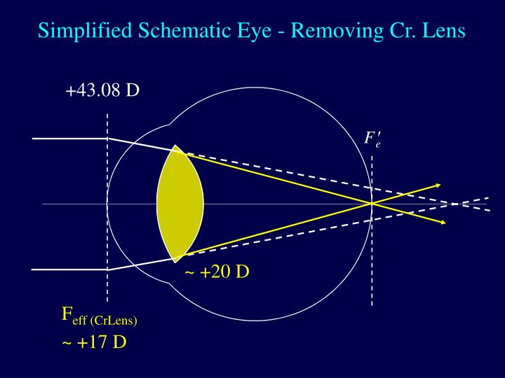 Simplified Schematic Eye - Removing Cr. Lens