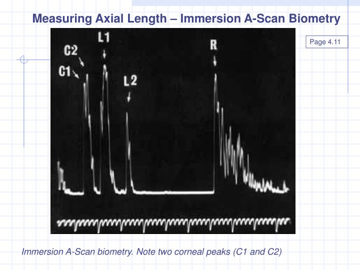 Measuring Axial Length – Immersion A-Scan Biometry