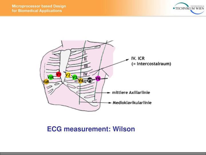 ECG measurement: Wilson