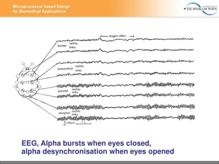 EEG, Alpha bursts when eyes closed,