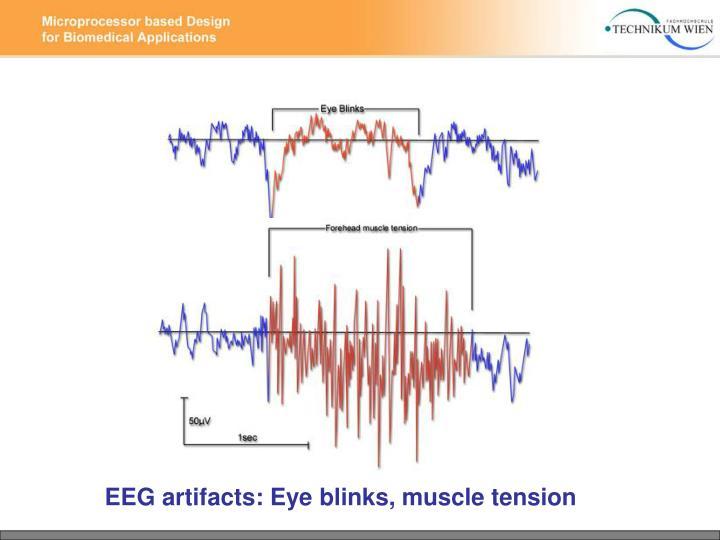 EEG artifacts: Eye blinks, muscle tension