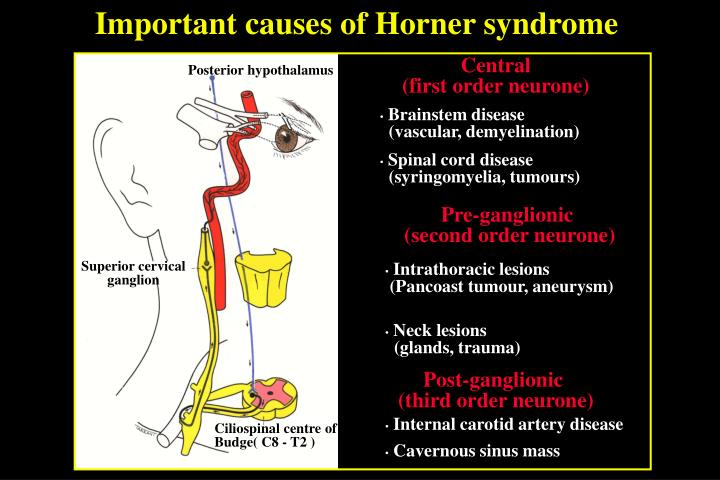Important causes of Horner syndrome