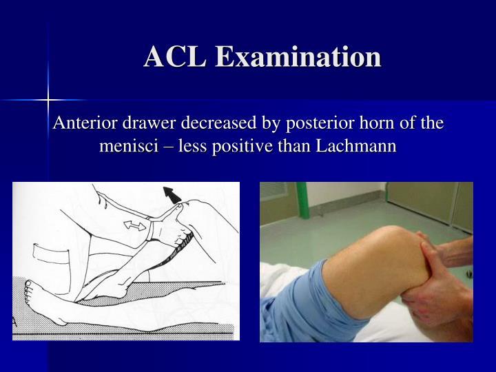 ACL Examination
