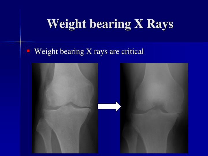 Weight bearing X Rays