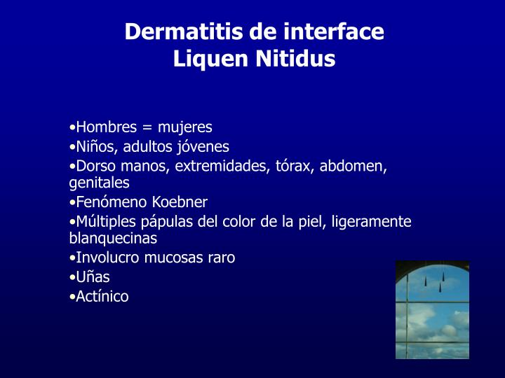 Dermatitis de interface
