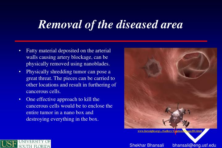 Removal of the diseased area
