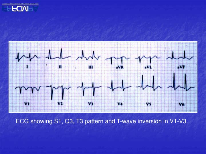 ECG showing S1, Q3, T3 pattern and T-wave inversion in V1-V3.