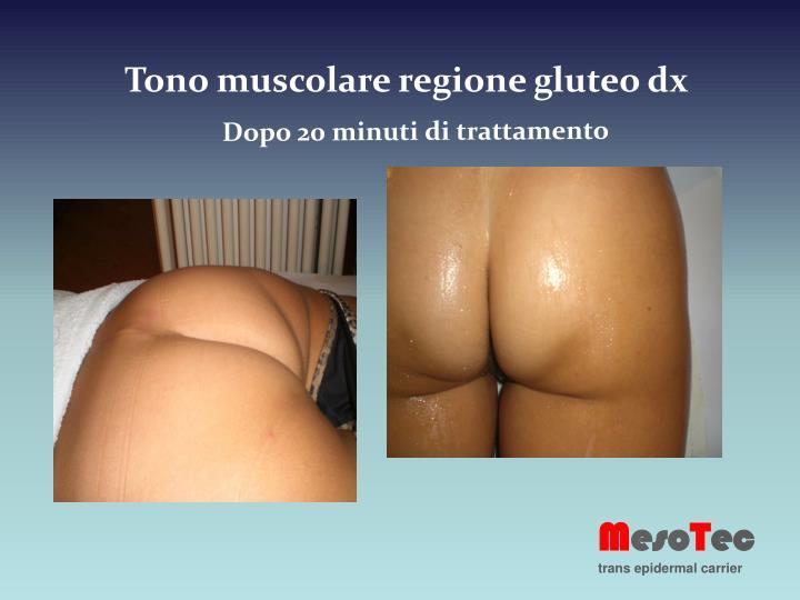 Tono muscolare regione gluteo dx