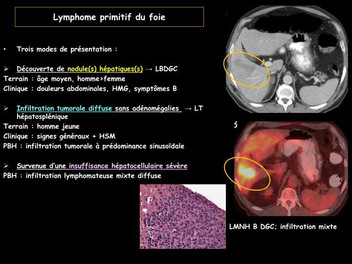 Lymphome primitif du foie