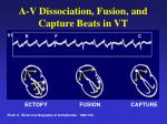 a v dissociation fusion and capture beats in vt
