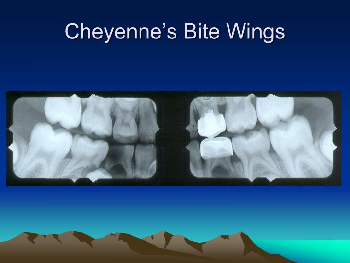 Cheyenne's Bite Wings