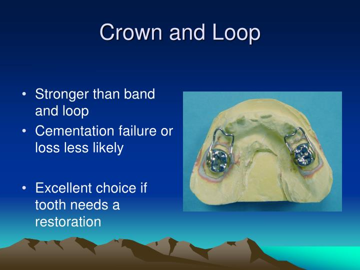 Crown and Loop