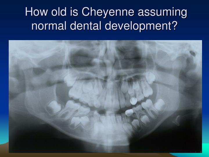 How old is Cheyenne assuming normal dental development?