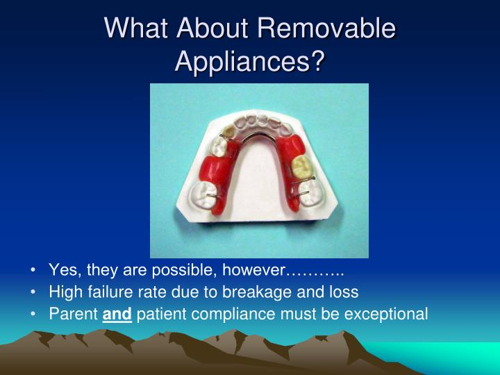 What About Removable Appliances?