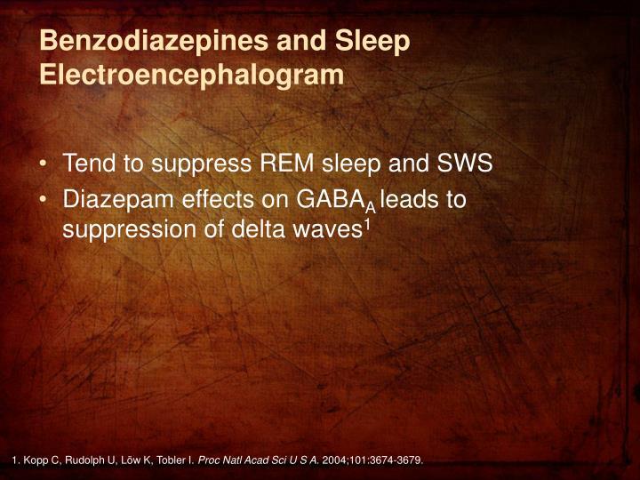 Benzodiazepines and Sleep Electroencephalogram