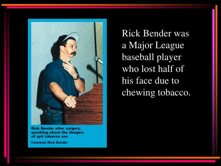Rick Bender was a Major League baseball player who lost half of his face due to chewing tobacco.