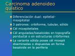 carcinoma adenoideo qu stico