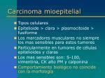 carcinoma mioepitelial2