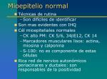 mioepitelio normal5