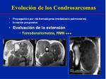 evoluci n de los condrosarcomas3